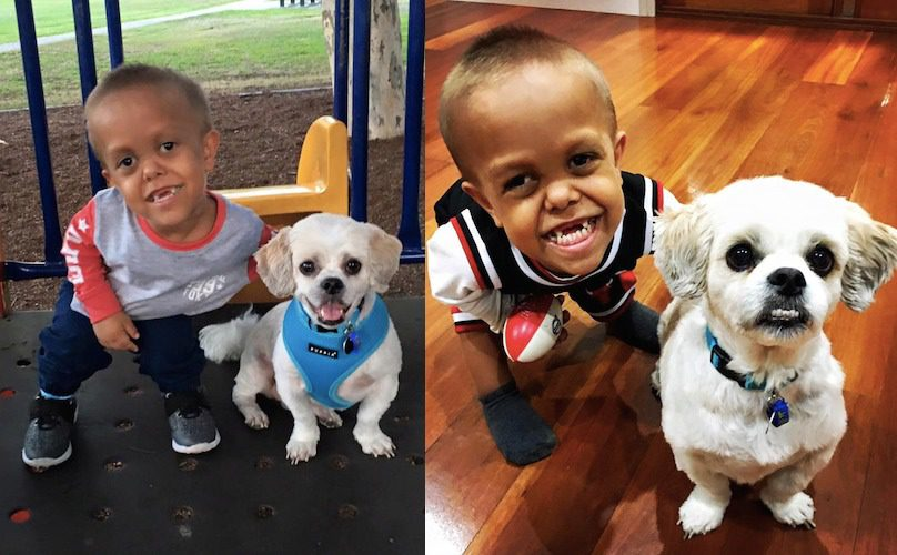 Boy-with-Dwarfism-and-Dog